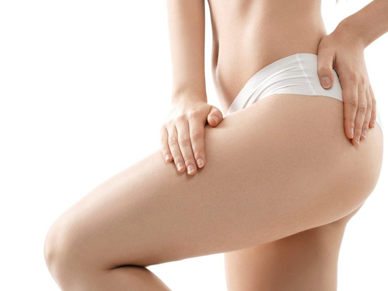Thigh lift or cruroplasty